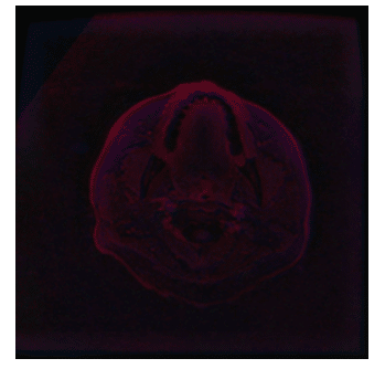 CLAHE brain image segmentation