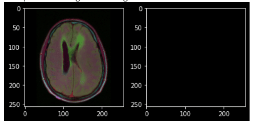 brain image segmentation
