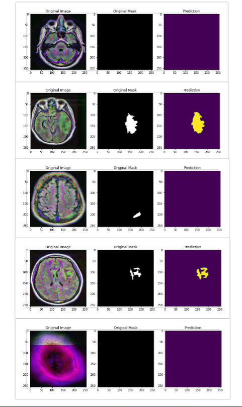 brain mri segmentation results